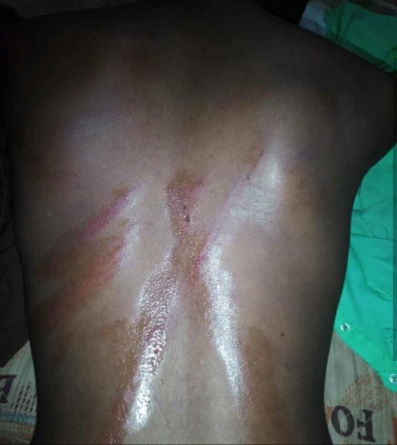 Students brutalized in school for being Marlians