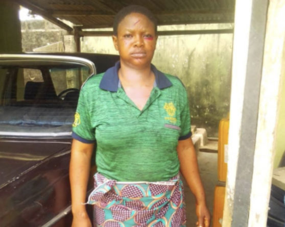 Nigerian Man Allegedly Beats Wife to Coma Over Divorce